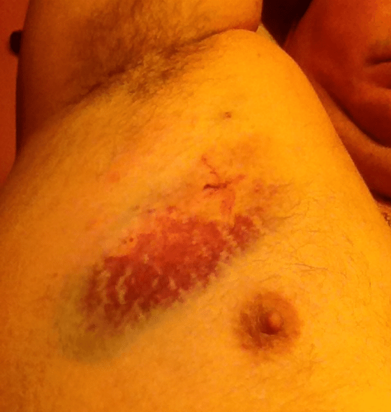 Bruising Work: A welt that Galescu says he received from a job accident.